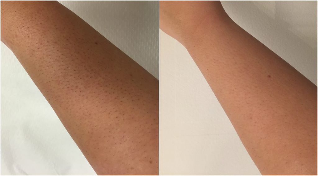 laser-arm-hair-removal-before-and-after